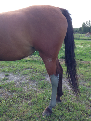 La jambe enflée de Shaheen avec de l'argile